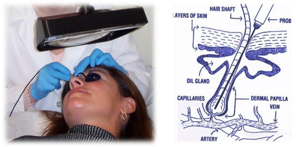 curso de electrolisis y curso de electrolisis y laser
