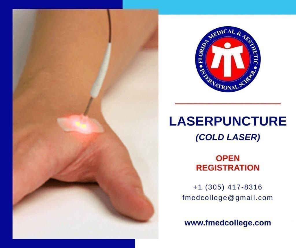 Laserpunture registration